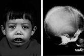 Nỗi đau căn bệnh 12 triệu người Việt mang trong mình
