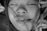5 giờ chạy đua cứu gương mặt cô gái trẻ bị tai nạn giao thông cày nát mặt