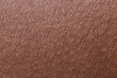 """10 biểu hiện """"lạ"""" ở da có thể là báo hiệu một căn bệnh nghiêm trọng"""