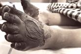 Bị thương ở chân tay hay côn trùng đốt... mà có những dấu hiệu thế này thì cần tới bệnh viện ngay lập tức