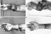 """Bàn tay bị máy tuốt lúa nghiến đứt rời, bệnh nhân chỉ lo """"ai nấu cơm cho mẹ già 80 tuổi"""""""