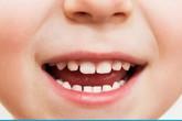 Lấy gần 100 cái răng trong miệng thiếu niên ở Khánh Hòa