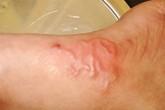 Bệnh nhiễm giun lươn có thể biến chứng nặng