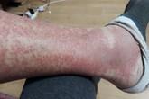 Nhầm với đau khớp, nhiều người phải cắt cụt chi vì căn bệnh hiểm