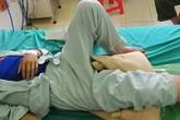 Suýt tử vong, mất chân chỉ vì tự chữa ngứa, điều trị vết thương rất nhỏ