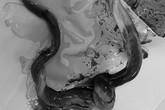 Em bé chào đời với dây rốn hoại tử bầm tím có một nút thắt