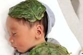 Từ trường hợp bé sơ sinh bị bỏng da do đắp lá trầu không, chuyên gia cảnh báo không tự ý dùng trầu không chữa bệnh