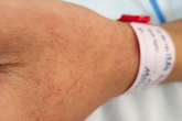 11 người chết vì sốt xuất huyết, 6 cách phòng bệnh ai cũng làm được dễ dàng