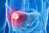 Thấy 5 dấu hiệu này, hãy cảnh giác ung thư gan đang đứng rất gần, nhanh chóng đi gặp bác sĩ ngay còn kịp