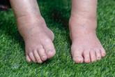 Dấu hiệu bất thường trên chân tiết lộ tình trạng sức khỏe của bạn