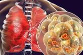 4 dấu hiệu cảnh báo căn bệnh ung thư phổi đang tấn công cơ thể, đừng coi thường kẻo mất mạng