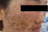 Cô gái trẻ chết lặng vì mặt sùi như tổ ong sau 2 lần dùng bột rửa mặt mua online