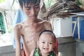 Đau xót cảnh người cha cố duy trì sự sống để chờ hiến thận cho con