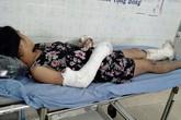 Thai phụ bị chồng đánh vỡ nền sọ, gãy tay bất ngờ trốn viện