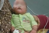 Uống kháng sinh mẹ tự mua, bé 8 tháng tuổi suýt chết