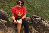 11 năm chiến thắng ung thư của người phụ nữ đeo chân giả