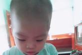 Trao quà cho bé trai bục dạ dày 2 tháng tuổi 3 lần phẫu thuật