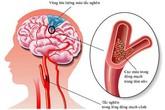 Sai lầm nhiều người mắc khi sơ cứu người bị đột quỵ khiến bệnh trầm trọng hơn
