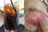 Uống 2 chai nước ngọt mỗi ngày, cánh tay người đàn ông thối rữa, hoại tử