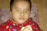 Thắt lòng trước cảnh bé 3 tuổi không mở được mắt, chưa biết nói, biết đi