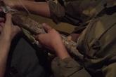 Bác sĩ trắng đêm cứu nam thanh niên bị thanh sắt dài 2m đâm thấu ngực