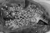 BV Việt Đức cảnh báo, nhiều người phải cắt thận vì lười uống nước