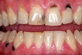 Làm thế nào để ngăn chặn tình trạng chân răng bị đen và xỉn màu?