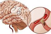 Phòng tránh thiếu máu não