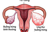 Nhiều trẻ chưa 15 tuổi đã mắc ung thư buồng trứng, đừng chủ quan khi thấy dấu hiệu này