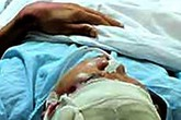 Thanh niên 17 tuổi bị đánh chấn thương sọ não trên sân bóng
