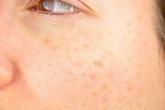 Cách hạn chế đồi mồi trên da