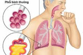 Đón Tết đừng quên phòng chống bệnh viêm phổi cấp lây truyền từ Vũ Hán, Trung Quốc