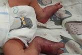 Đau đớn, bé sơ sinh gãy chân vì mẹ sinh con ở nhà