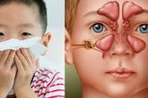 Viêm xoang ở trẻ em cần điều trị thế nào?