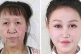 Màn lột xác của cô bé 15 tuổi nhưng mặt nhăn nheo, chảy xệ như cụ già 60 tuổi