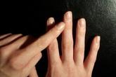 Nếu ngón tay xuất hiện những dấu hiệu này, cảnh giác ngay vì có thể bạn mắc ung thư phổi