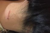 Cựu công an đánh vợ cũ lĩnh án 15 tháng tù