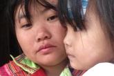 Bé gái 3 tuổi ở vùng cao đang chờ mổ lần cuối tái tạo hậu môn mà gia đình không còn tiền đi viện