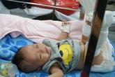 Thông tin mới nhất về sức khỏe của bé 4 tháng tuổi bị bố đánh gãy chân, xuất huyết não