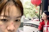 Bác sĩ chống dịch corona ở Vũ Hán: 'Đóng bỉm vì đi vệ sinh là xa xỉ'