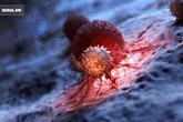 Cùng mắc ung thư, có người chữa khỏi nhưng có người tử vong: Do 3 điểm khác biệt cần biết