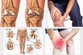 Nguyên nhân gây viêm khớp và cách hóa giải nhờ viên uống Zbone
