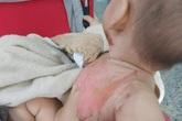 Bé 2 tuổi bị bỏng nước sôi pha mì tôm khi đùa cùng anh trai