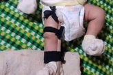 Bất ngờ lời khai của người bố bị tố đánh gãy chân con 2 tháng tuổi