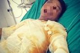 Hà Tĩnh: Sửa sự cố điện, nam công nhân bị điện phóng gây bỏng nặng