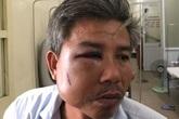 Chủ quán cà phê đạp vào mặt nhân viên cây xanh bị khởi tố
