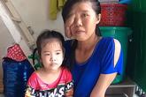 Xót xa cảnh đời cô gái bị chồng bỏ đi vì mặt bị biến dạng sau khi sinh con