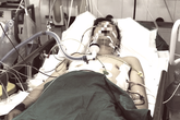 Tin mới nhất về sức khoẻ tài xế GrabBike bị cướp đâm 6 nhát