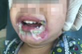Bé gái 2 tuổi bỏng nặng vùng miệng do cắn dây điện, cảnh báo sự bất cẩn của người lớn vô tình hại trẻ