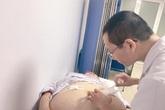 Bệnh nhân nặng 90 kg giảm béo thành công nhờ phương pháp đặc biệt này?